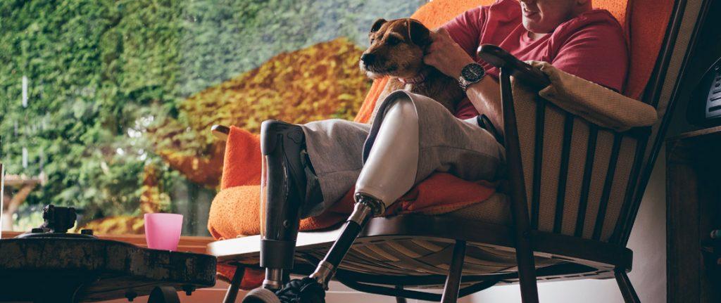 Mann med benprotese sitter i stol med hund på fanget