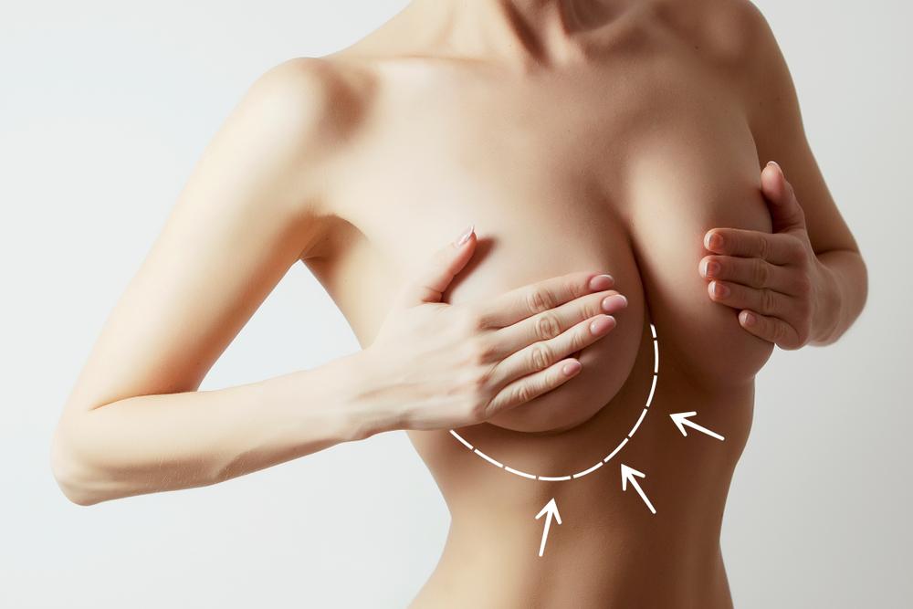 technique de reduction des seins, lifting mammaire