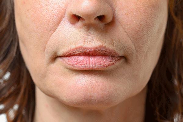 Anti Wrinkle Treatments Bridgend