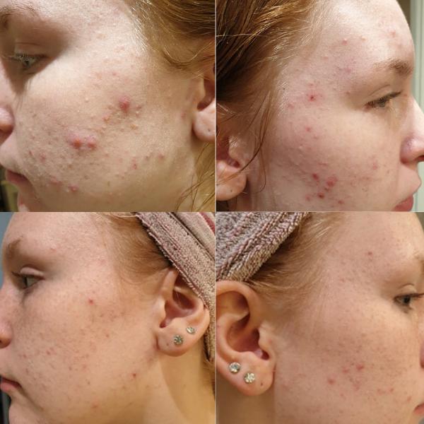 CBD olie og creme fra Natures-Help hjalp Lærke mod acne