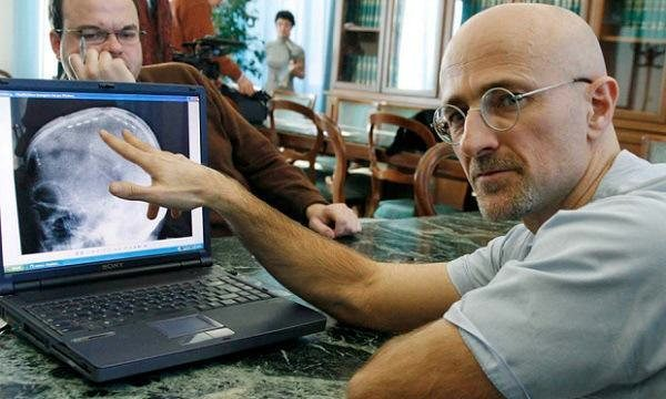 Sergio Canavero has exposed that the world's first human head transfer will take place within 10 months, and he's before now planning his next mission.