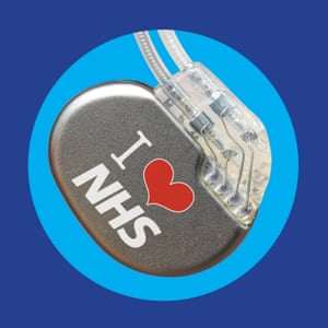 NHS pacemaker