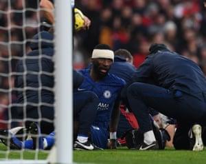 Chelsea's Antonio Rudiger (C) receives medical treatment.
