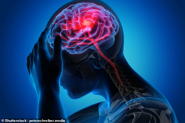 One in every 100 Covid-19 patients will suffer a stroke, data of hospital patients shows