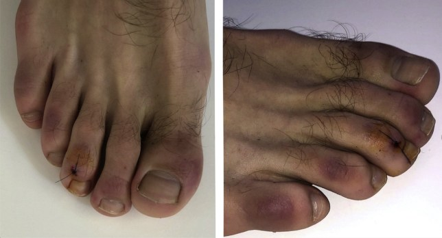 What are 'Covid toes' and how long do they last for after you have coronavirus?