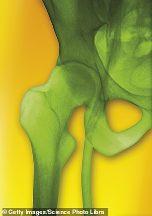 Like 2.4m people in England, James had very painful osteoarthritis in his hips (stock image)