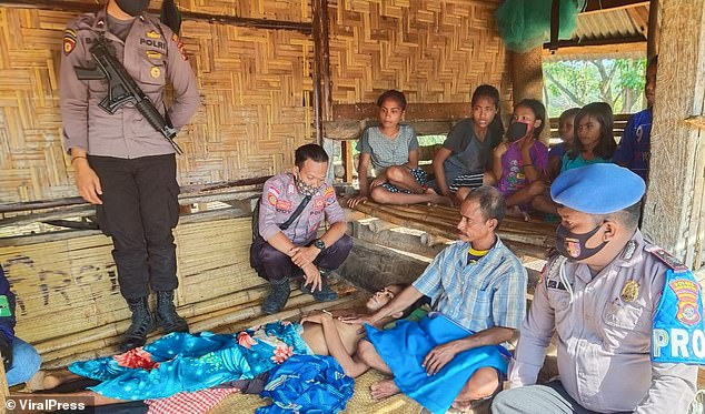 Mario is pictured surrounded by police as he recovers from the ordeal inEast Nusa Tenggara, Indonesia. Police said they will be going to the girlfriend's house to question her parents