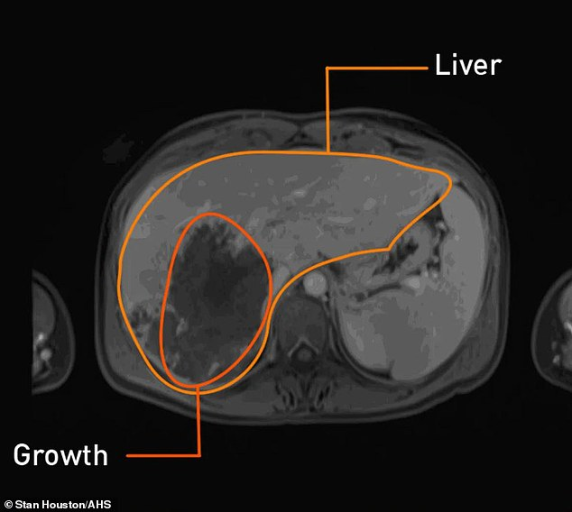 Above is a scan showing the liver and a cancerous growth inside it. This was taken from Cassidy Armstrong, 36, from the US, who thought she was facing a 'death sentence' when the watermelon-sized tumour was identified