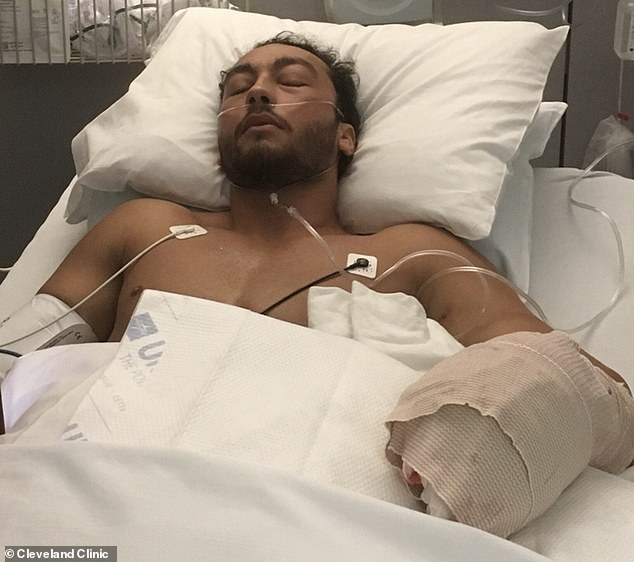 Brittain was working as a groundskeeper at Kent State University when his lawnmower slipped on a patch of mud and flipped over and landed on top of it. Pictured: Brittain in bed after surgery