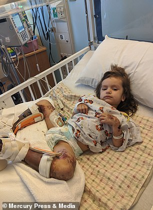 Pictured, Riley following her five-hour amputation
