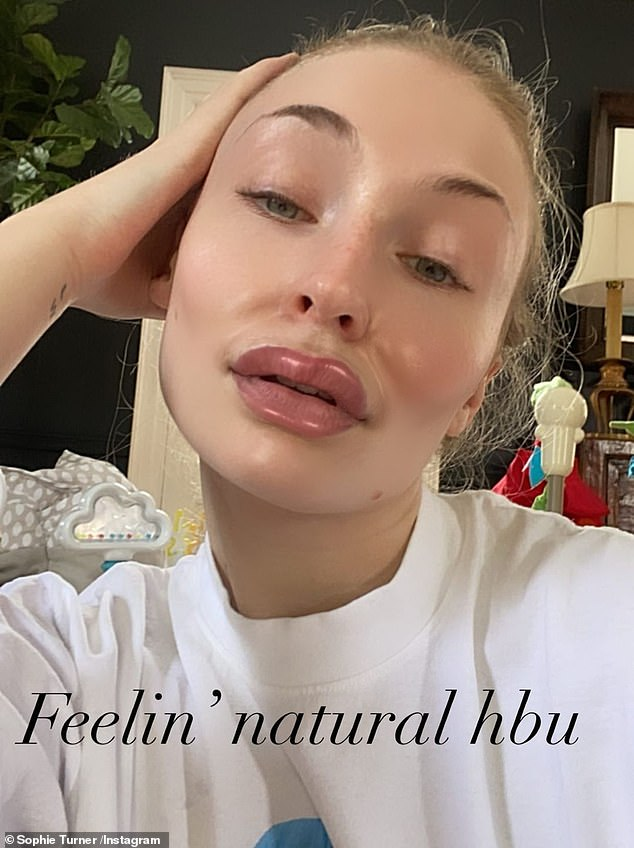 Filter fun:Sophie Turner had fun with a filter Sunday on social media