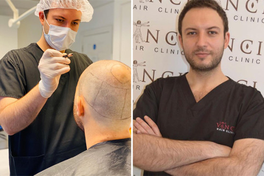 Dr Ducu Botoaca hair transplant surgeon mapping out hair on a patient.