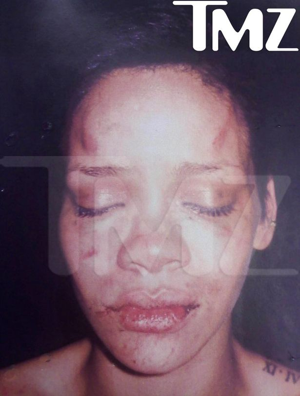 Rihanna was assaulted by then-boyfriend Chris Brown on their way home from a pre-Grammys party