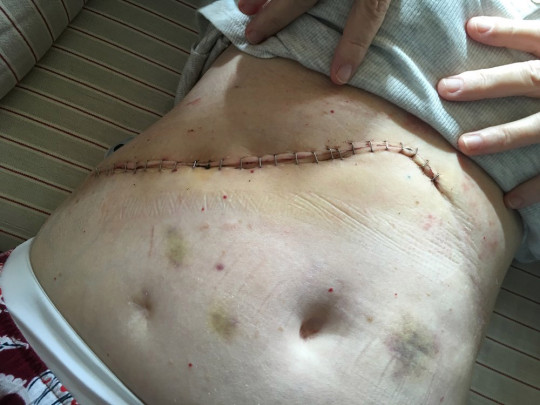 Fiona's scar from the Whipple procedure, pictured in September 2019. PA REAL LIFE COLLECT