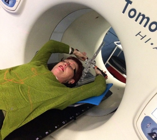 Fiona in a radiotherapy machine in January 2018. PA REAL LIFE COLLECT