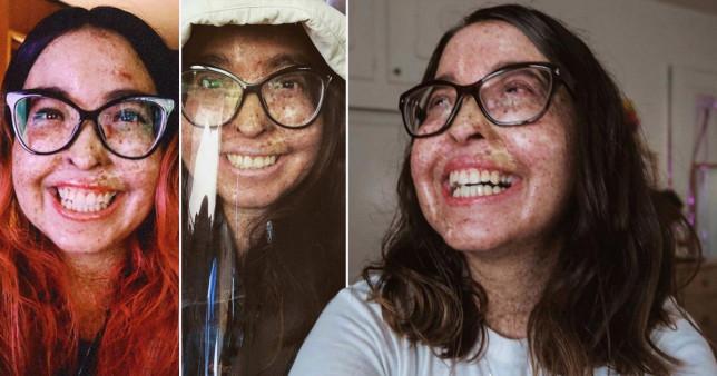 Woman allergic to sunlight in rare condition
