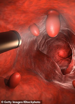 A colonoscopy is one way to screen patients for colorectal cancer.
