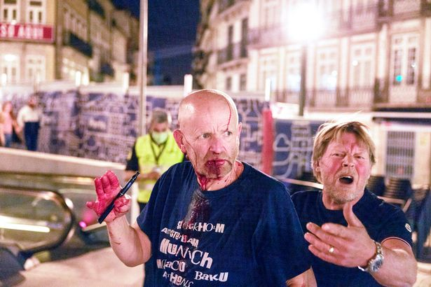A fan in Porto for the Champions League final. There is no suggestion this man was fighting, either with police or with other fans