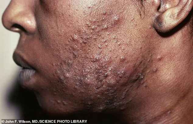 Pustular acne on a young man's face. Acne is a general name given to a skin disorder in which the sebaceous glands become inflamed. The most common form, acne vulgaris, begins in adolescence and is due to overactivity of the sebaceous glands