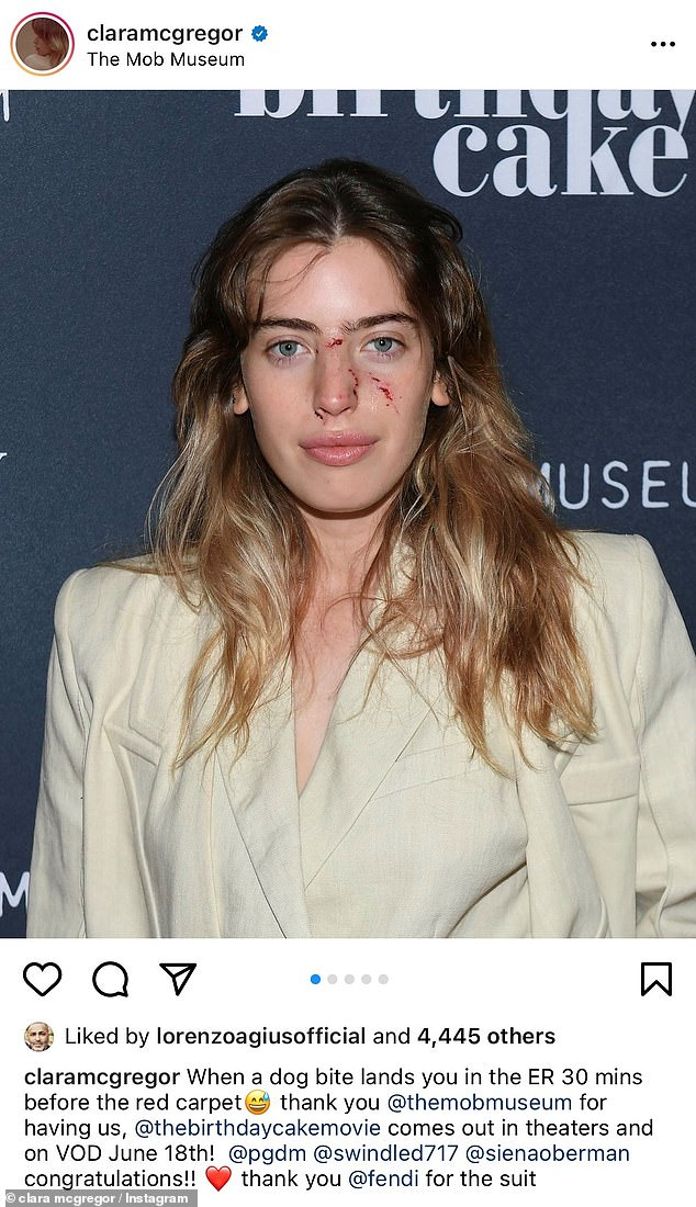 Ouch!Ewan McGregor's daughter Clara , 25, was bitten in the face by a dog, requiring a trip to the emergency room prior to a film premiere at The Mob Museum in Las Vegas on Friday