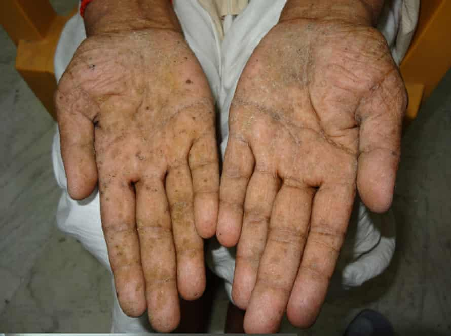 Skin lesions from arsenic poisoning