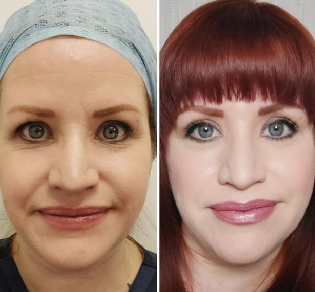 Ruth had her eyes lifted ahead of her wedding in August, and wants Botox too