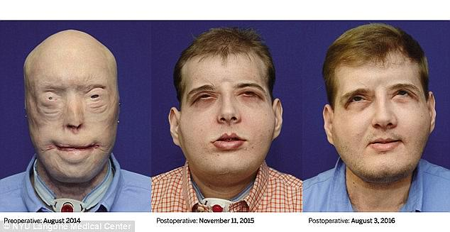 His ears, nose, lips and eyelids were burned off, and he had to have more than 70 surgeries to treat his injury. Pictured, left to right: Hardison's face before the operation, two months after the operation and one year after the operation