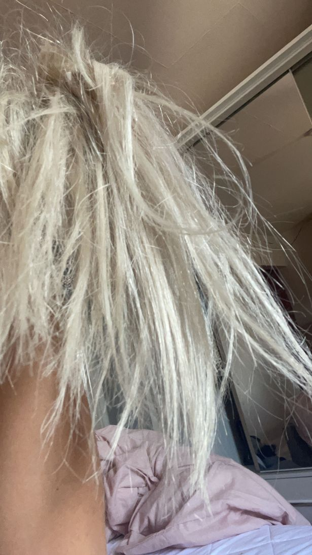 The 27-year-old said her scalp became itchy and sore
