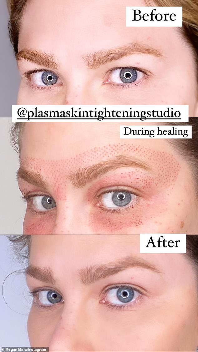 Results:'I basically wanted to have more eyelid!' she explained to her 158,000 followers
