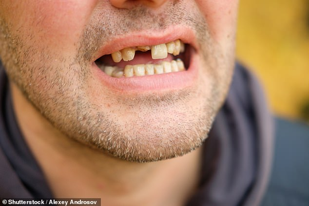 Researchers from New York University found that tooth loss is a risk factor for both dementia and cognitive impairment – and with each tooth lost, the risk grows (stock image)