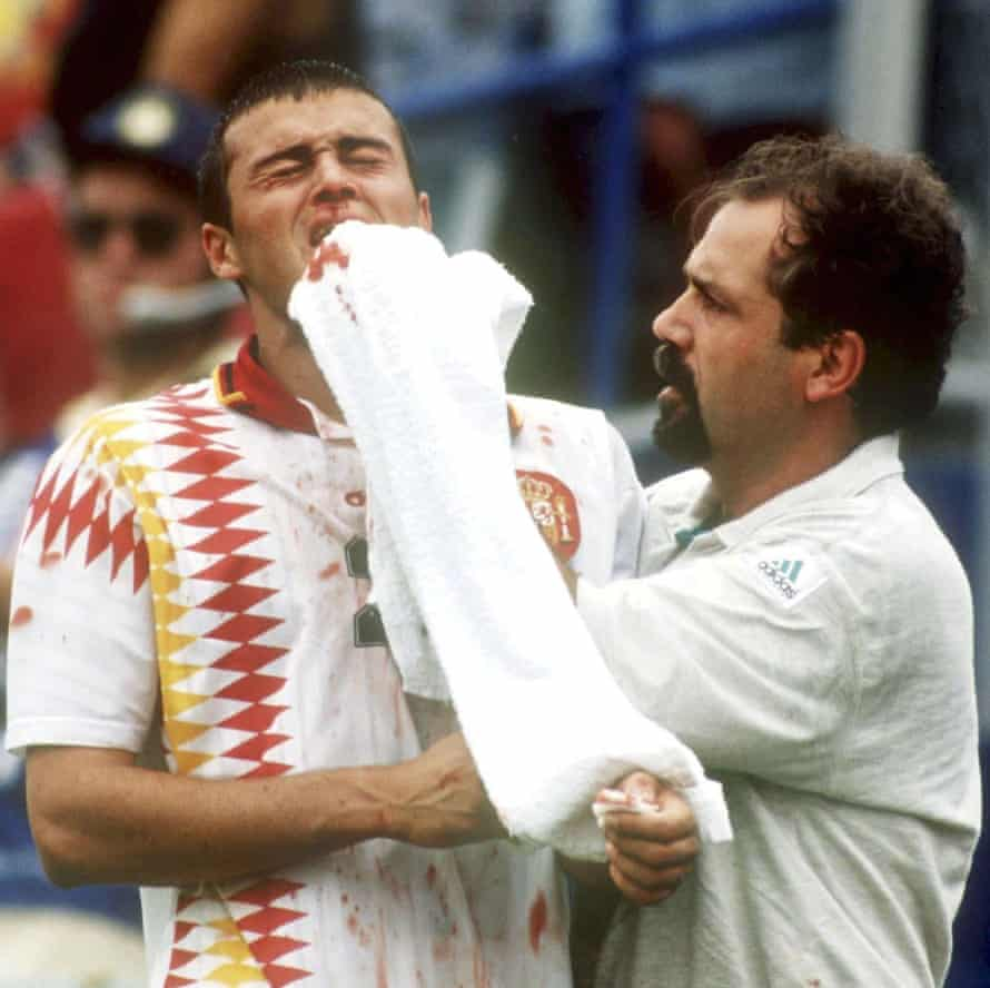 Luis Enrique has his nose broken playing against Italy at the World Cup in 1994.