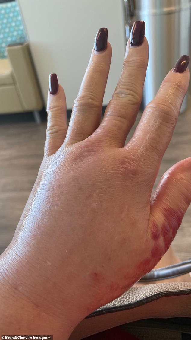Hard to look at:She flashed a maroon manicure as she held up her red, swollen hand