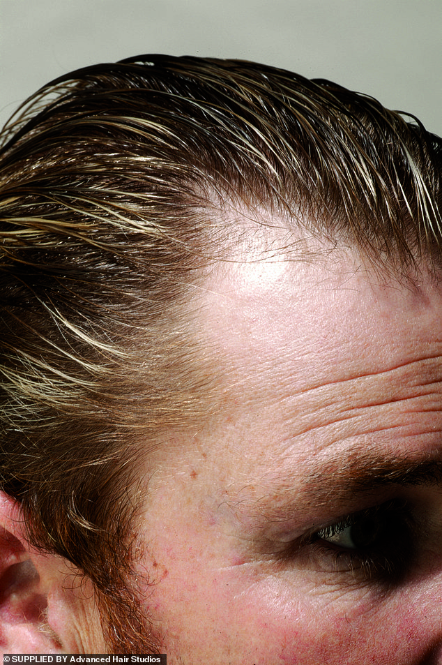 Seeking treatment: Before treatment, he experienced thinning hair over the crown of his head and thinning around the sides. Pictured before