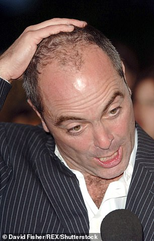 Long time: He had his first hair transplant more than a decade ago in 2007 (pictured in 2006)
