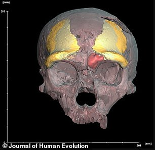 The Zeeland Ridges specimen mirror-imaged and superimposed on the skull of another Neanderthal - La Chapelle-aux-Saints. The left sinus of La Chapelle-aux-Saints is segmented in red