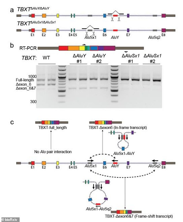 This mutation consists of 300 genetic letters in the middle of the TBXT gene