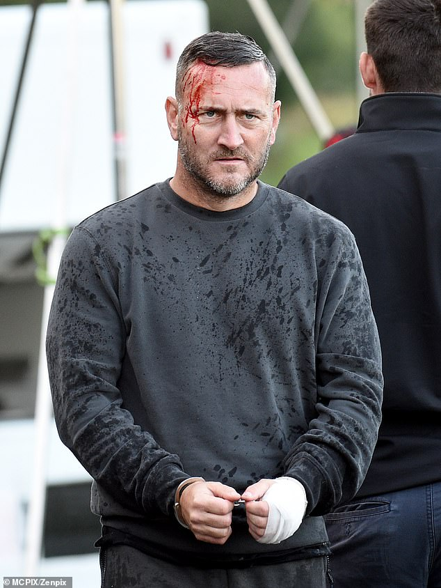 Ouch! Drugs kingpin Harvey Gaskell suffered a nasty cut to his forehead as actor Will Mellor was spotted filming dramatic scenes escaping from a prison van on Monday