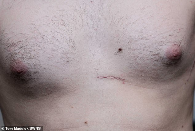 Surgery: Mr Spare's scar from having the heart-regulation device fitted into his chest