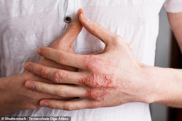 Hand eczema is very difficult to treat. For starters, using moisturisers and emollients is known to alleviate the symptoms of eczema, but as the hands are in constant use, greasy creams are a nuisance and impractical