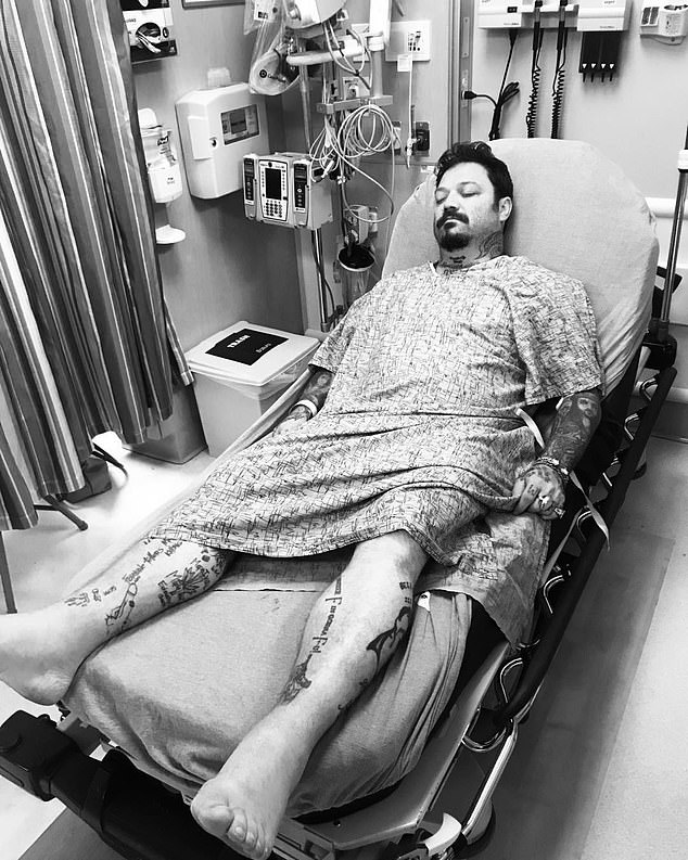 Medical scare: Jackass star Bam Margera revealed Wednesday that he had been admitted to the hospital for edema, a condition in which excess fluid builds up in the tissues