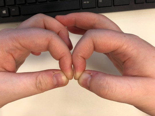 Diamond test for clubbed nails, a sign of lung cancer