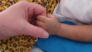 Baby with measles