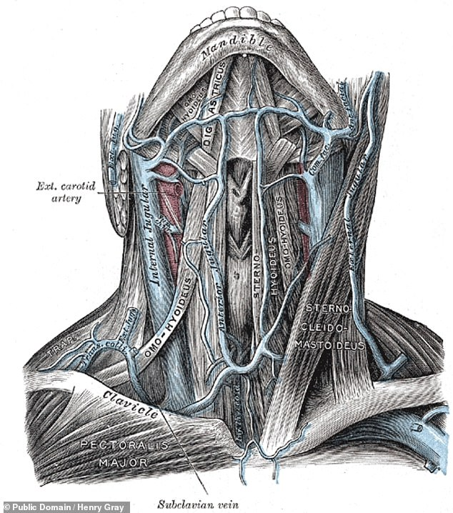 Distension — or swelling — of the jugular vein, pictured here in this anatomical cutaway, can occur as a result of certain illness, including heart failure and elevated intracardiac pressures