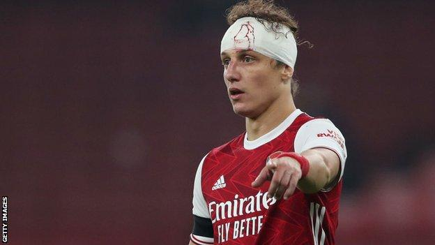 Arsenal defender David Luiz with a bandage on his head following a head injury during the match against Wolves