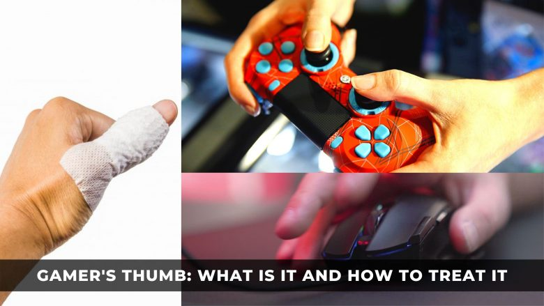 Gamer's Thumb: What Is It and How to Treat It
