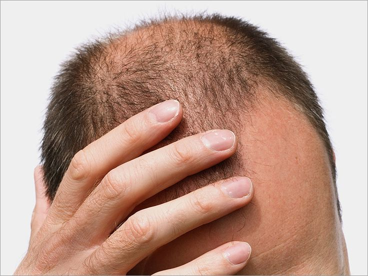 Simple Hair Loss Treatments for Men of Any Age