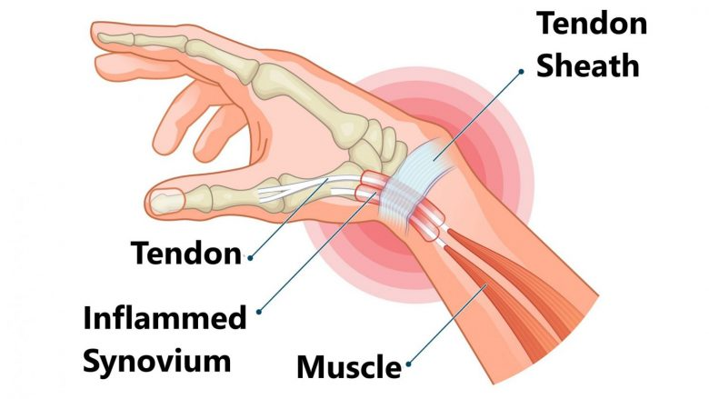 The bones, muscles, tendons and ligaments of your hand make up a complex system.