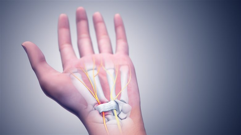 The carpal tunnel is a well-known area of injury.