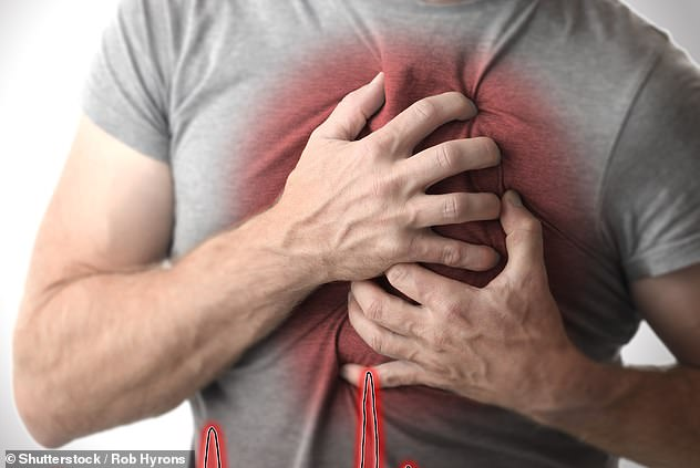 Cardiovascular disease (CVD) is a general term for conditions affecting the heart or blood vessels. CVD events include heart disease and stroke. All heart diseases are cardiovascular diseases, but not all cardiovascular diseases are heart disease