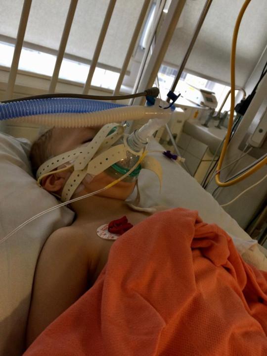 Josh on life support in the PICU. PA Real Life Collect